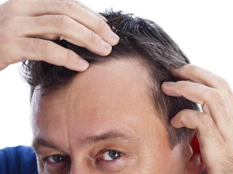 anticaida del cabello